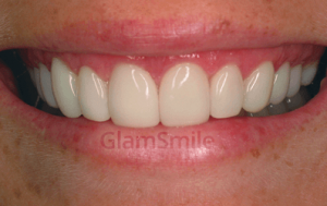 woman after glamsmile fit