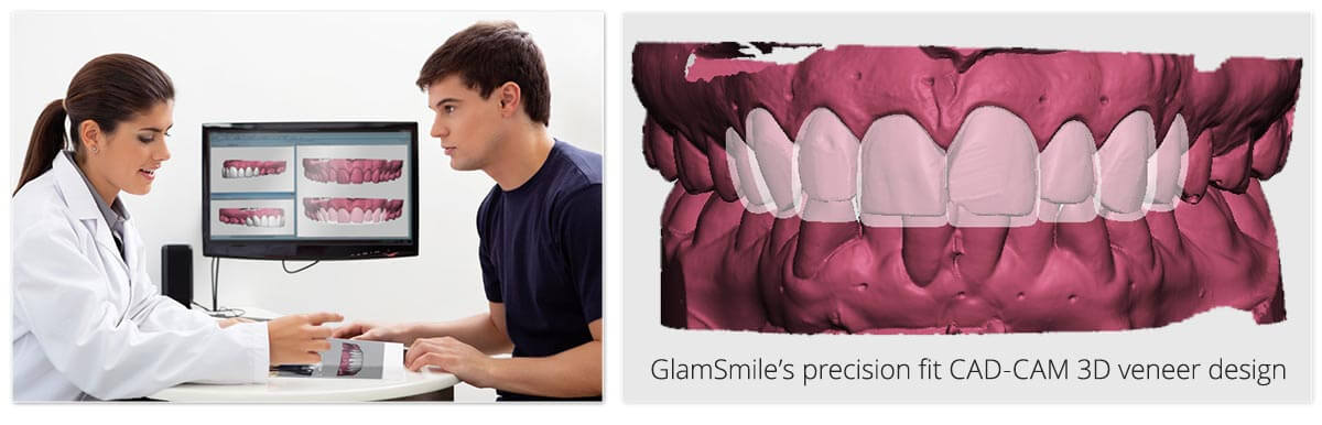glamsmile precision fit veneer design