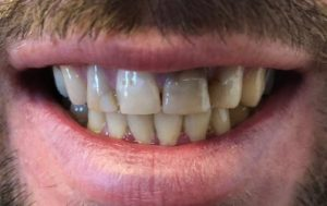 before glamsmile stained teeth male