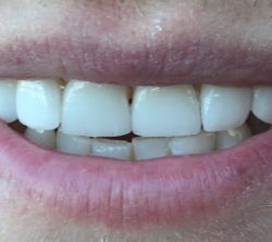 male after glamsmile veneers