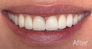 after glamsmile even white teeth