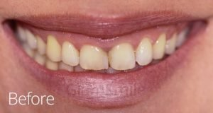 glamsmile before chipped yellow teeth